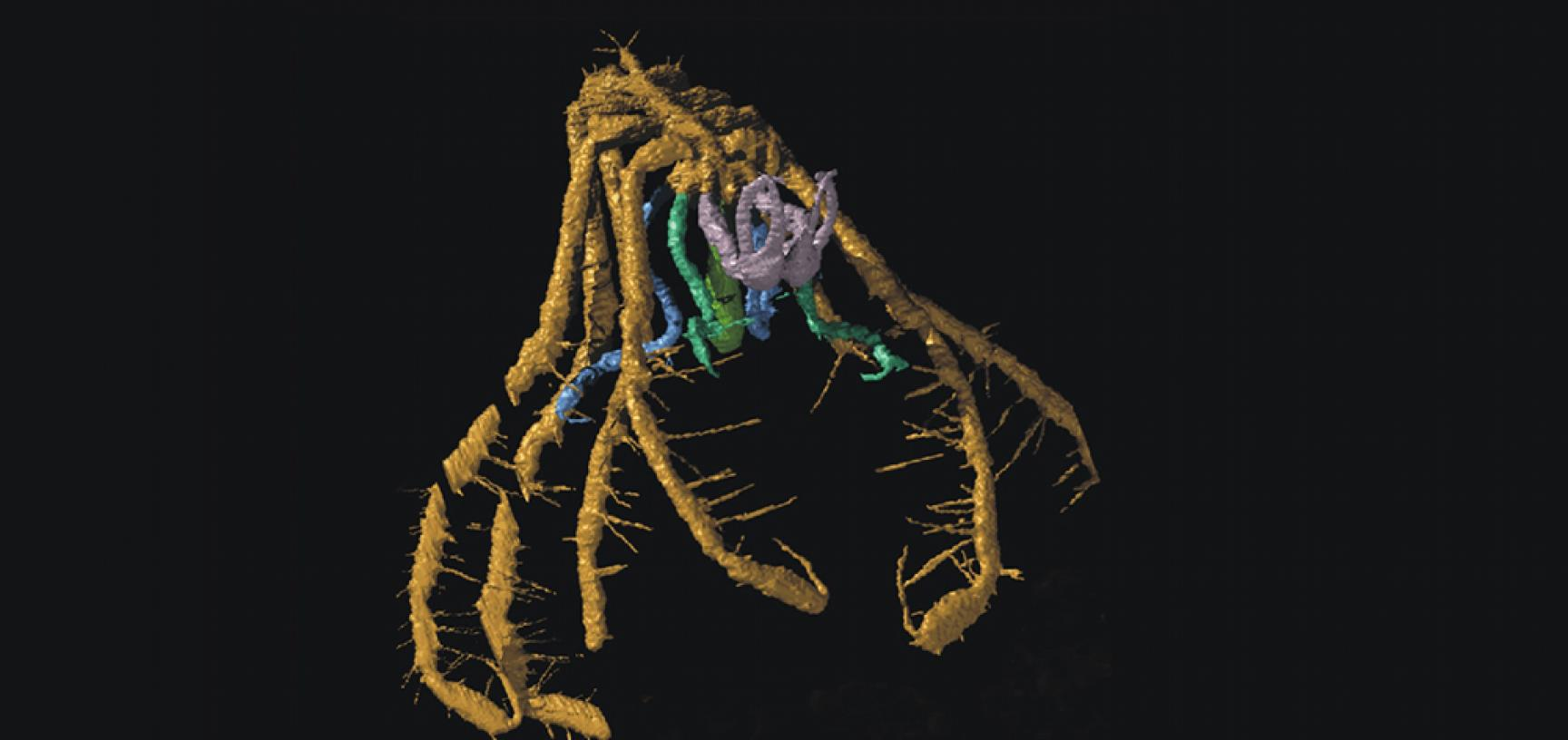 A fossil sea spider, pycnogonid arthropod, from the Silurian of Herefordshire, UK